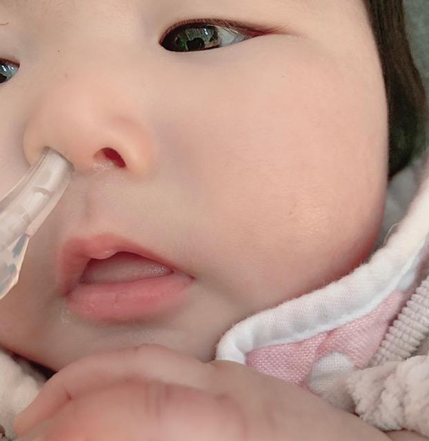 シリコンノズルを赤ちゃんの鼻に優しく差し込み、吸引します