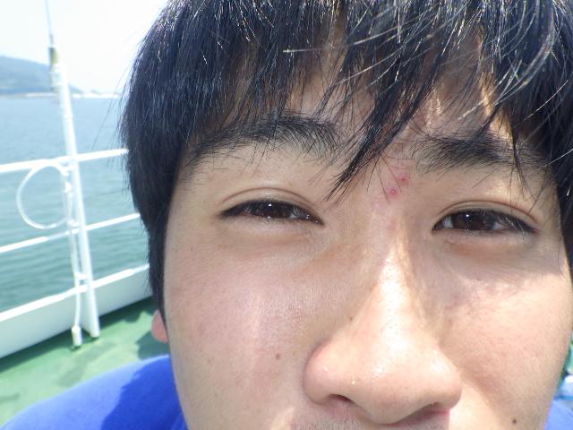 f:id:kuchinotsu:20180719151701j:plain