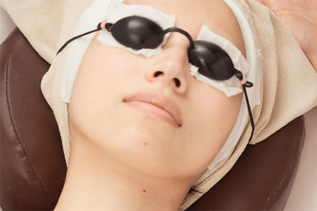 皮膚科での日焼けシミの消し方 イメージ
