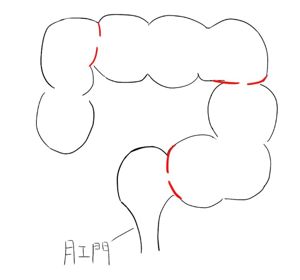 f:id:kusabii:20180309130840j:image