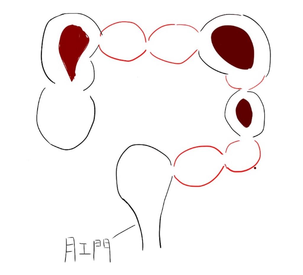f:id:kusabii:20180309131802j:image