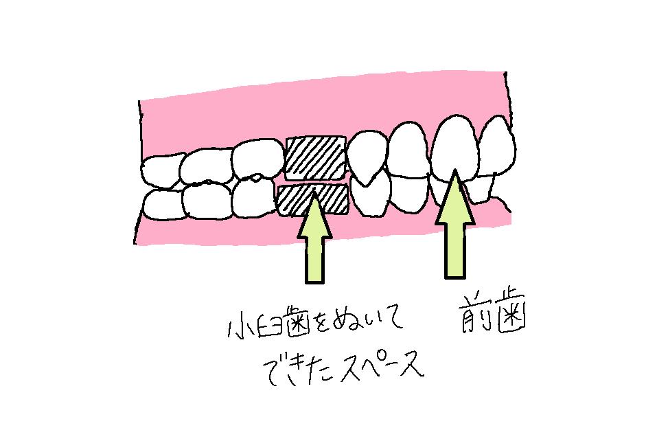 f:id:kusurino-ouchi:20181226212734p:plain
