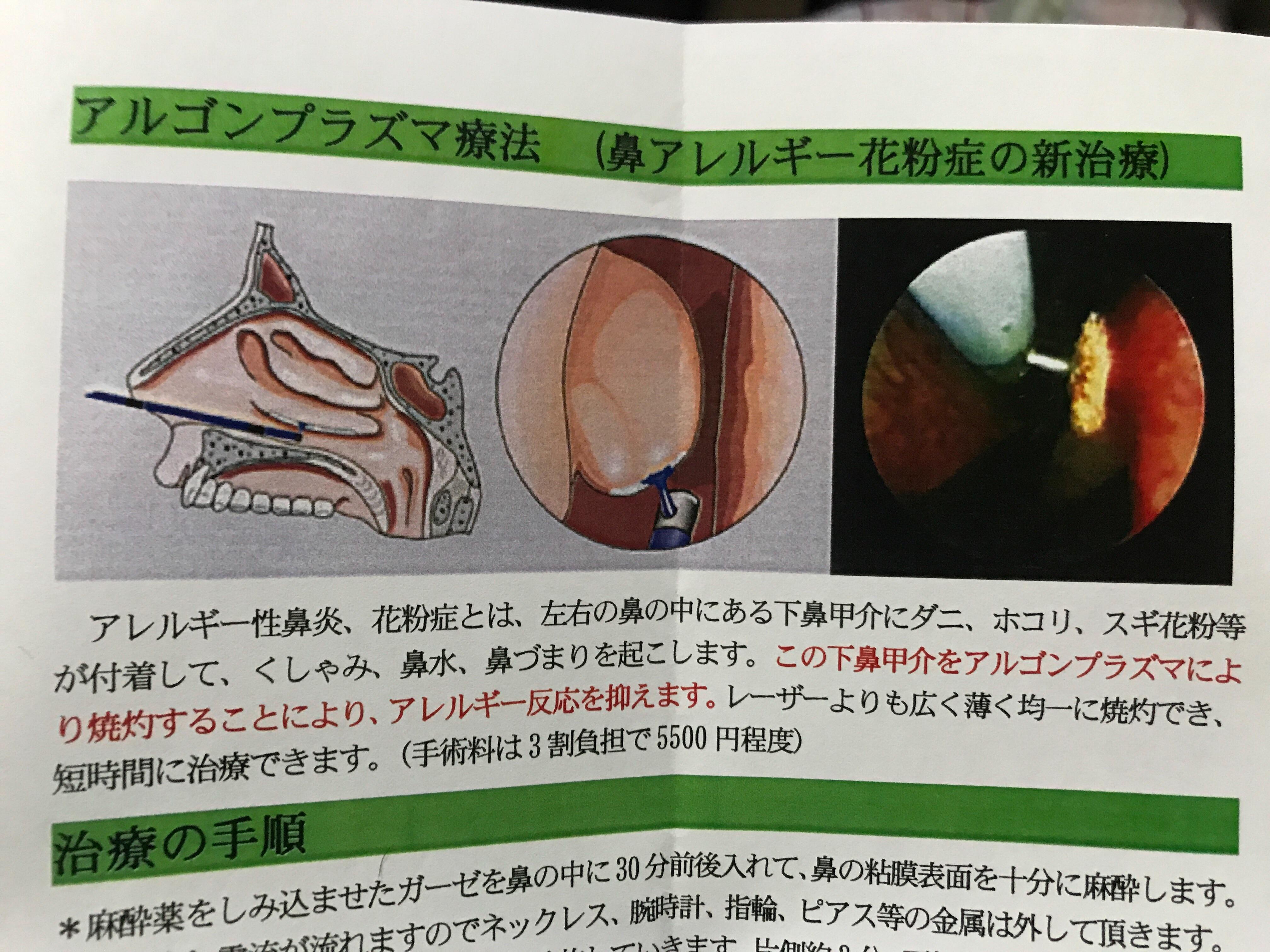 f:id:kyohei0212:20171213193603j:image