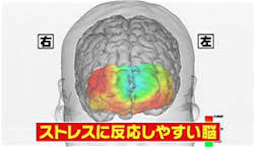 f:id:kyueisyougiku10kaidouzan:20170707141013j:image