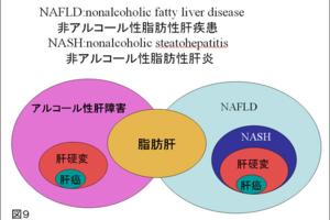脂肪肝とは日本消化器病学会