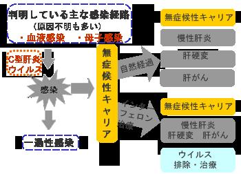 C型肝炎の自然経過