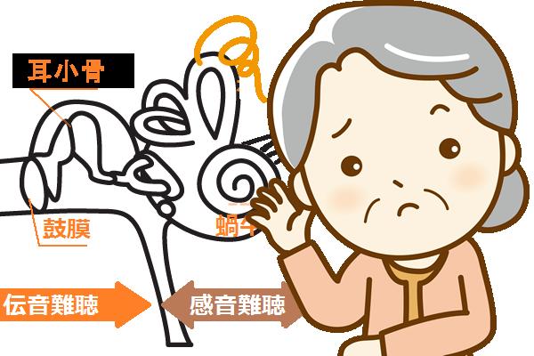 高齢者の中耳炎は放置されやすい~耳の聞こえが悪いのは加齢のせい?