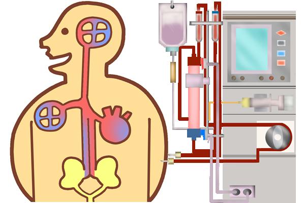 人工透析NO!腎機能低下を早期発見、クレアチニン検査と尿検査の重要性