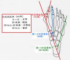 外反母趾の程度