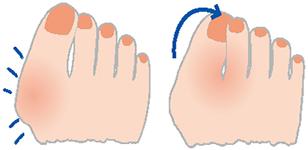 外反母趾の対処