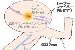 laser_for_varicose_veins