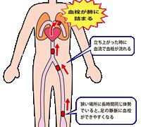 エコノミークラス症候群、急性肺血栓塞栓症
