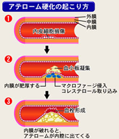 atherosclerosis_mechanism