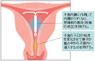 新しい避妊方法ISU