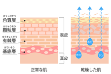 dry_skin_mechanism