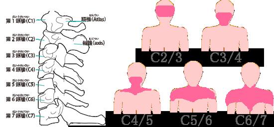痛みが出る場所と頚椎の異常との関係