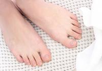 足は毎日洗い、乾かす。バスマットも乾いた清潔なものを使用しましょう。