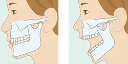 顎関節症と全身の健康の関係