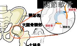 股関節はお椀状の骨盤のくぼみに球状の大腿骨がはまっていて、隙間を軟骨がつないでいます。