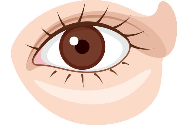 見えにくい、目が細くなった原因?まぶたのたるみを取る裏技あります