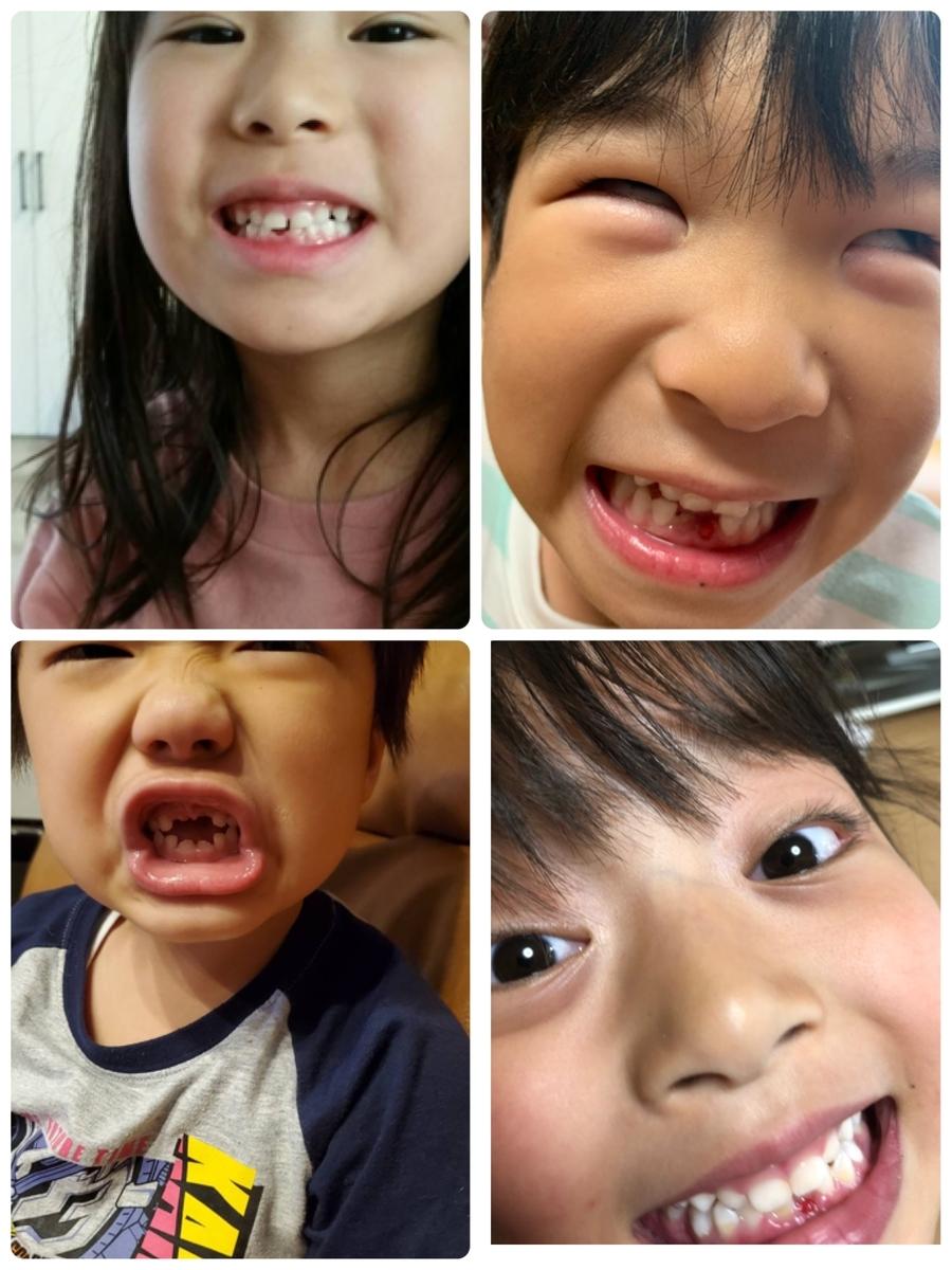 f:id:leo-dental-c:20200928215644j:plain