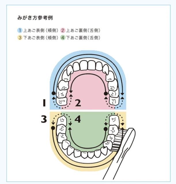 f:id:leo-dental-c:20210224220503j:plain