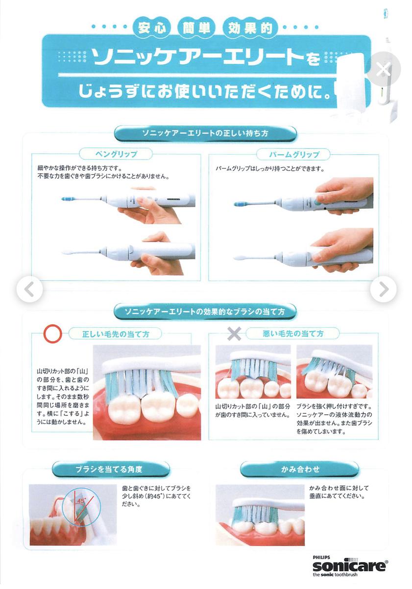 f:id:leo-dental-c:20210224230907j:plain