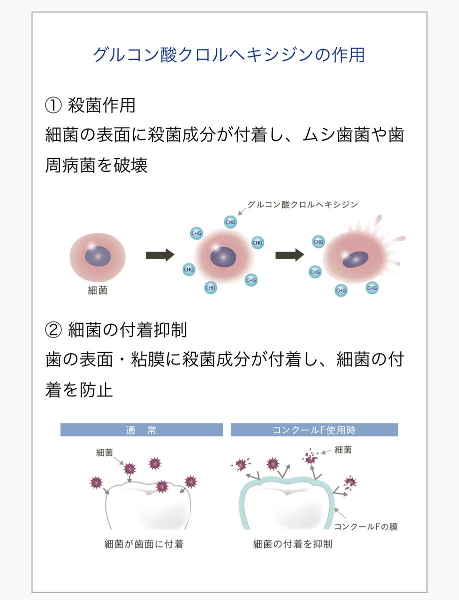 f:id:leo-dental-c:20210512212611j:plain
