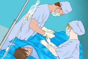 開腹手術は、腸の癒着を引き起こす主な原因