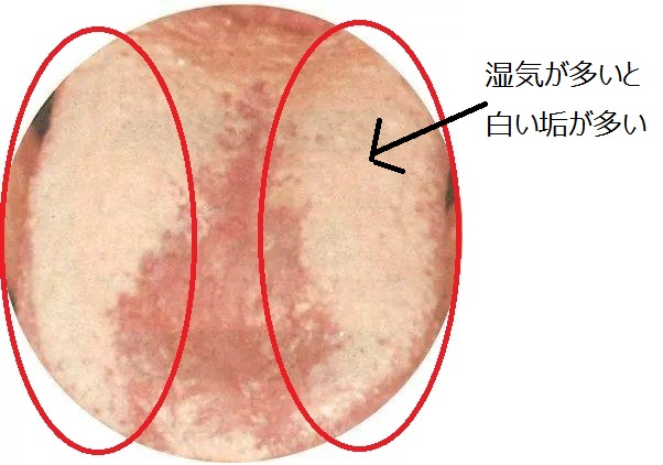 腻厚苔:赤い丸で囲まれているのが、白い舌苔。体内に湿気が多いから、このような白いのができる。