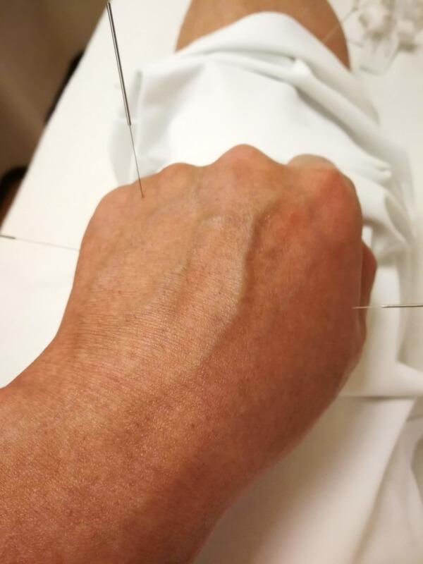 左手に刺した3本の針(後谿、中渚、合谷)