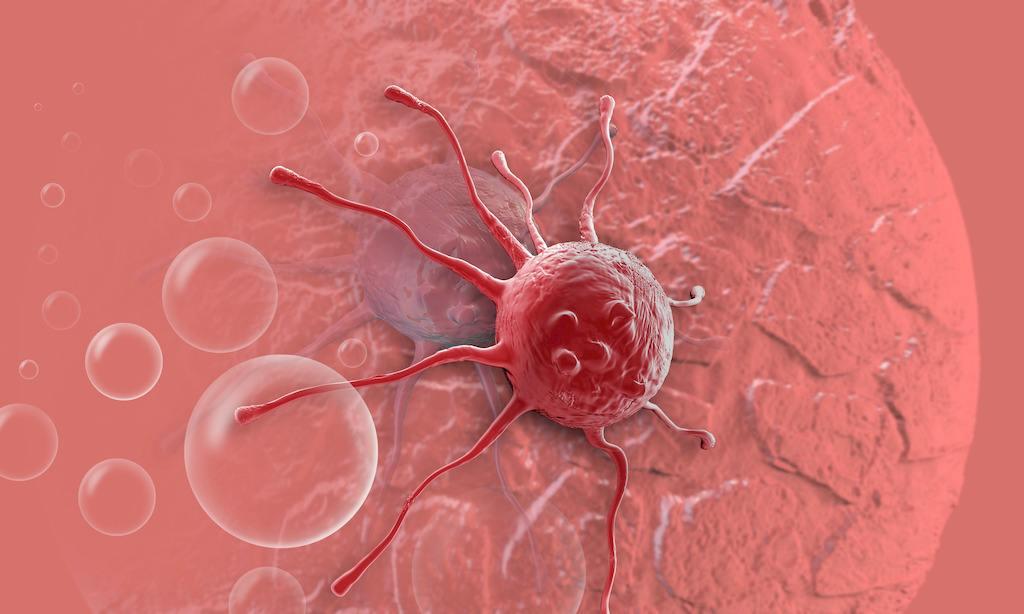 生検は癌を悪化させる!生検をしてはいけない!