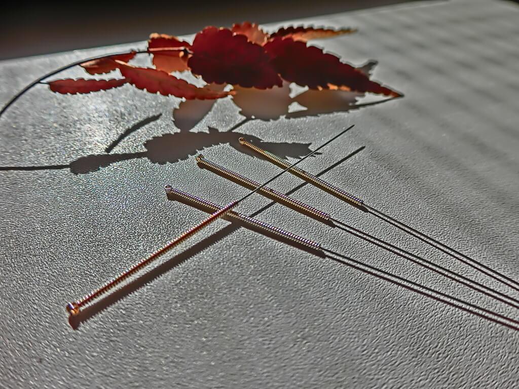鍼治療の効果