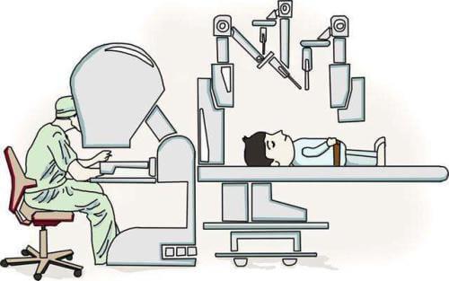 ダビンチ手術支援ロボット