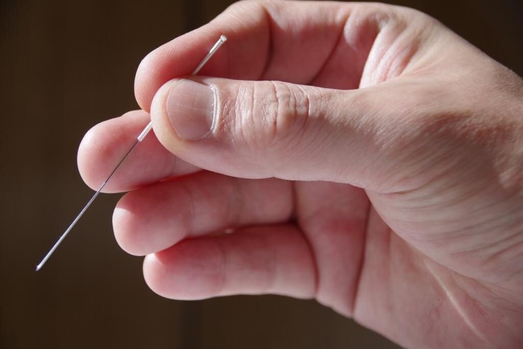 当院で使っている鍼は細い