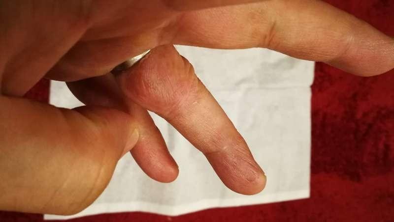 手の痒くない湿疹(乾癬?):左手の画像