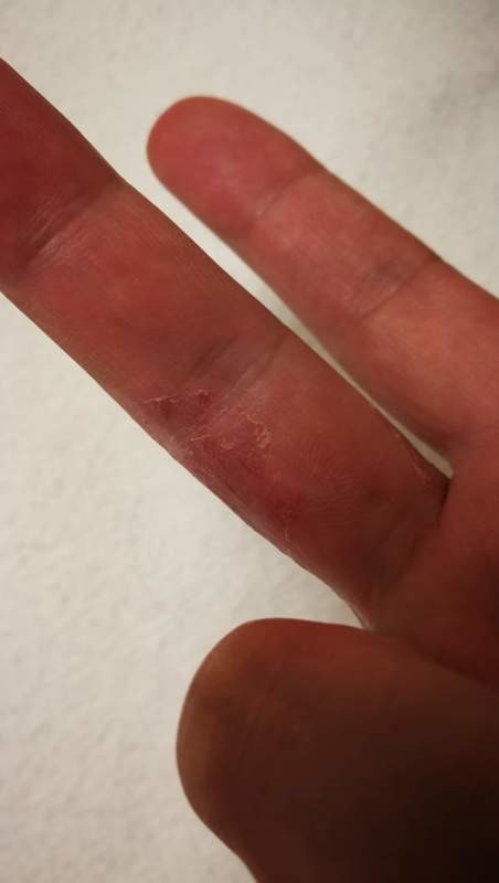 手の痒くない湿疹(乾癬?):右手の画像