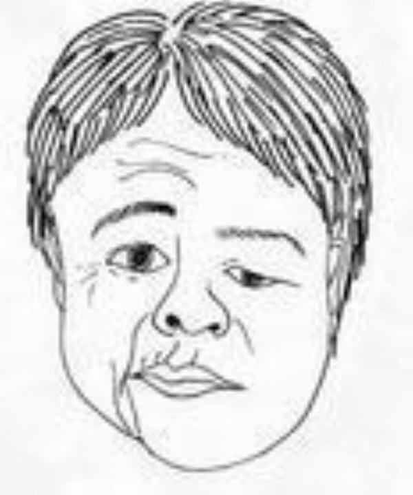 顔の歪みは鍼治療ですぐ治る