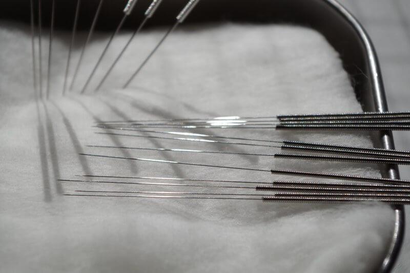鍼治療は回数をこなせることで、効果がパワーアップする