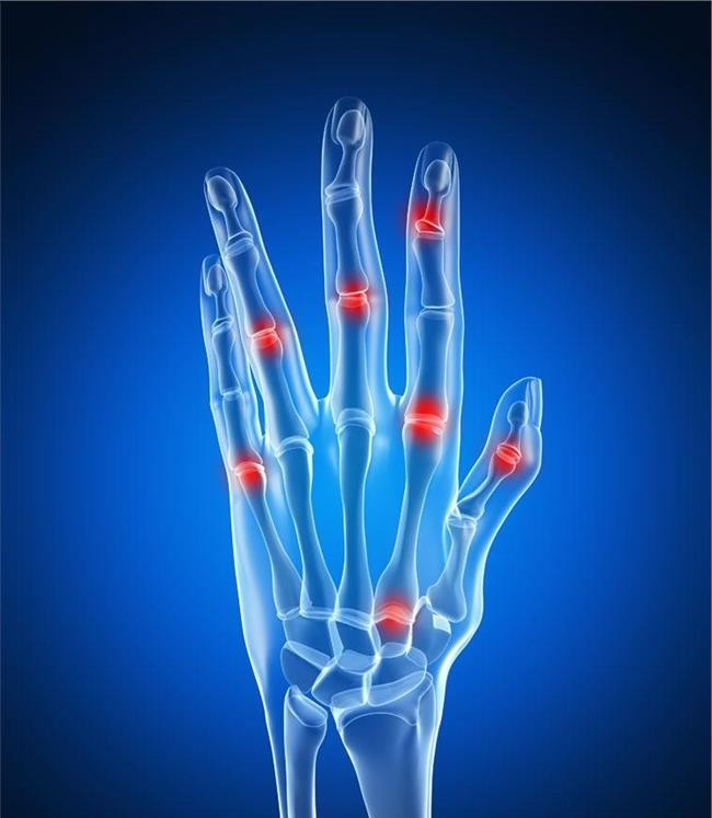手指関節痛は漢方・鍼灸で治せる