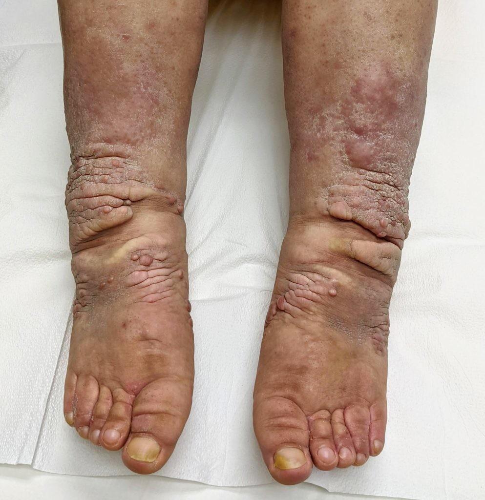 両足がこんなにむくんでも、「健康な人」だと言われる女性