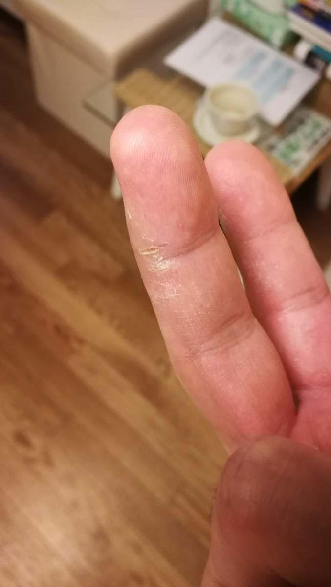中指のヒビ割れを鍼で治した