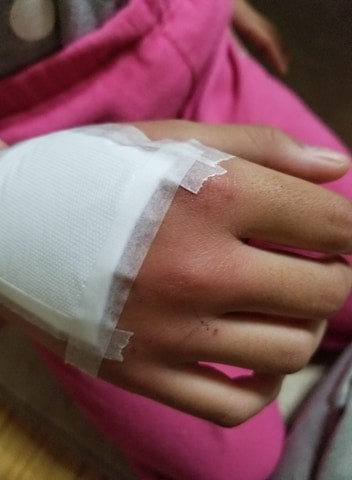 猫の引っかき傷、お灸したあとに包帯を巻いている