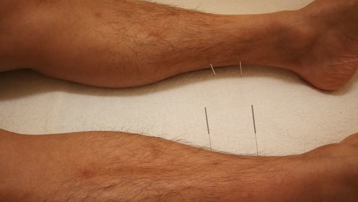 足に赤い発疹ができたのを鍼で治した