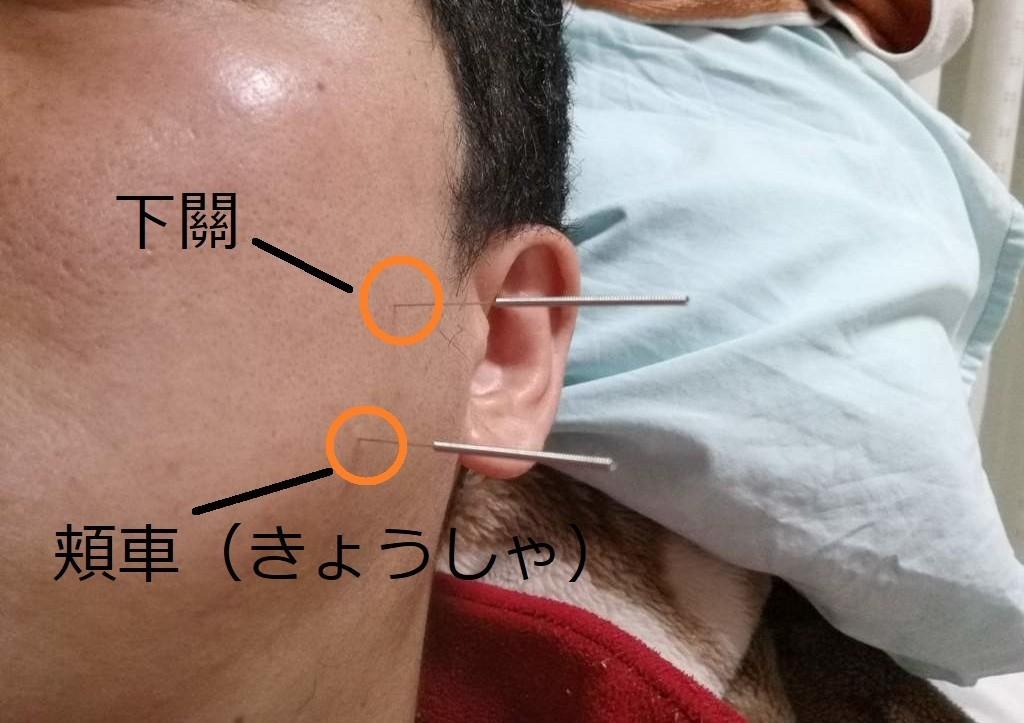 かぶせた歯が噛むと痛いのを治した鍼治療例