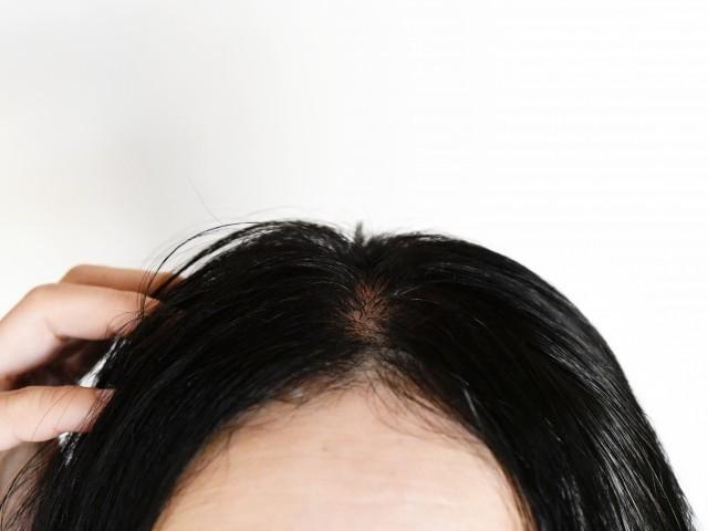 髪の毛がたくさん抜けるのは腎虚証