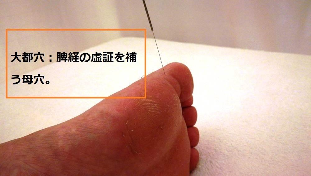 足の親指の裏が痛いのは、鍼治療1回で治った