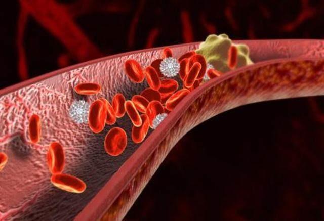 血栓は体内の冷えが原因である