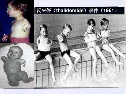 たくさんの畸形児を作り出したサリドマイド薬害事件