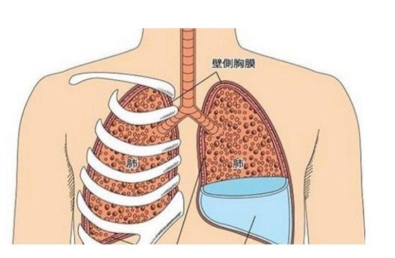 穿刺しても再発する胸水、漢方薬でほぼ完治